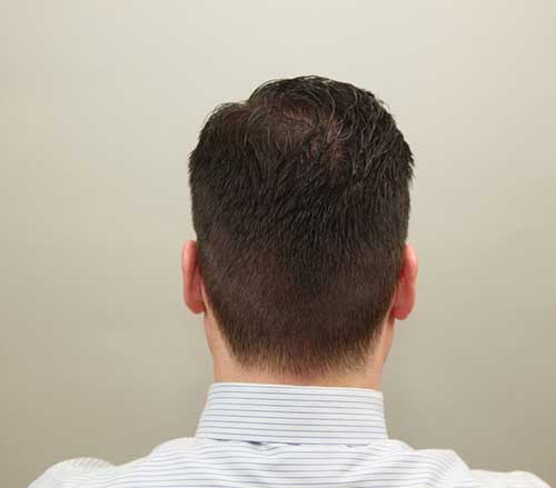 Casual Men Haircut Back Look